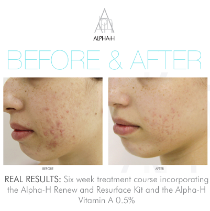 Alpha-H Acne Before and After